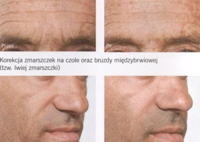 Efekty zabiegu